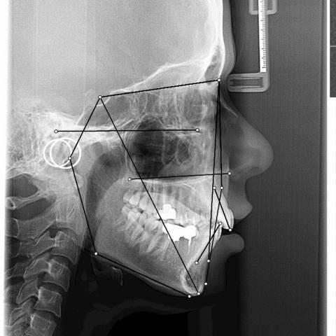 WebCeph - تطبيق ترسيم الصور الشعاعية لأطباء تقويم الأسنان