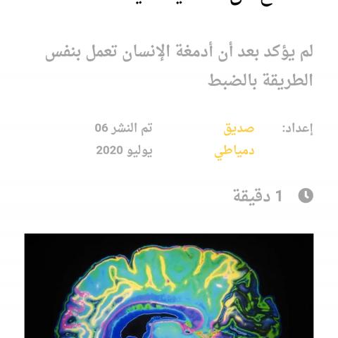 لأول مرة تصوير عملية تخلص الدماغ من الخلايا الميتة
