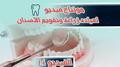 مونتاج فيديو إعلاني لعياده زراعة وتقويم الاسنان   - الفيديو (14)